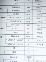【メタボ?】昭和40年男の健康診断